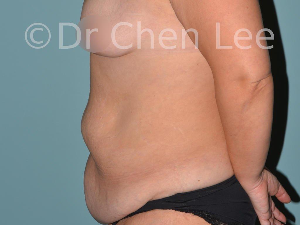 Abdominoplastie avant après redrapage abdomen photo côté gauche #05
