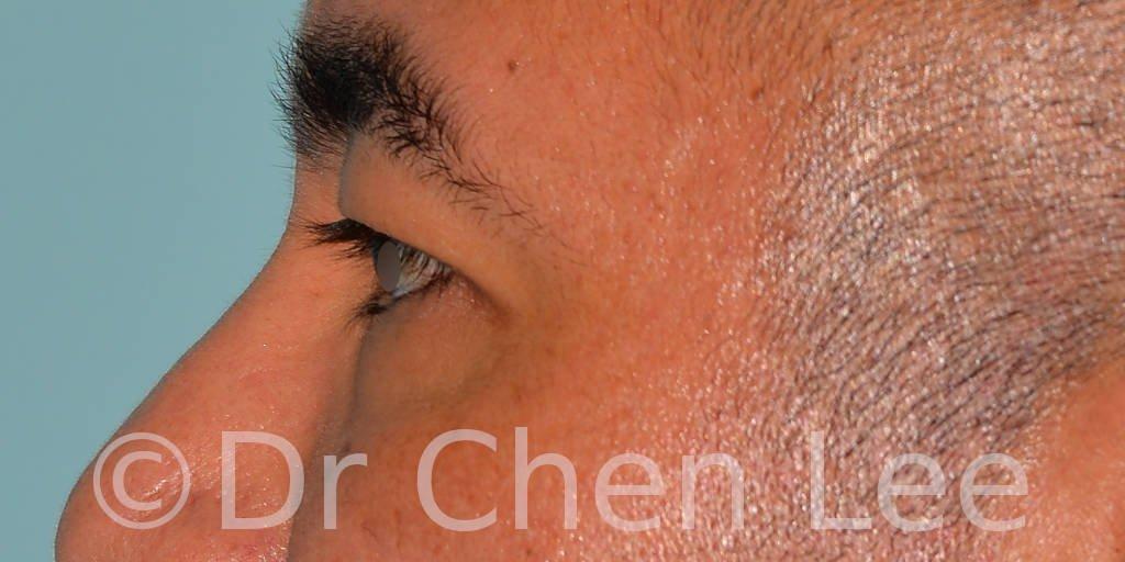 Blépharoplastie asiatique avant après chirurgie des paupières photo côté gauche #02