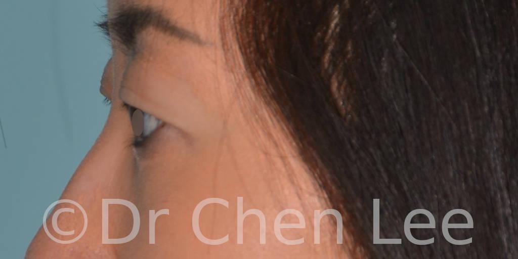 Blépharoplastie asiatique avant après chirurgie des paupières photo côté gauche #03