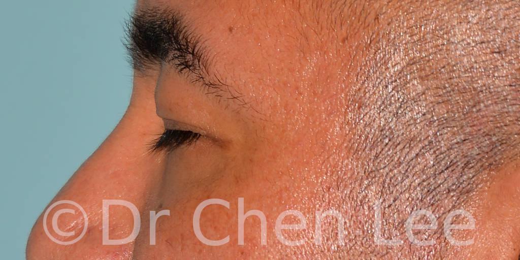Blépharoplastie asiatique avant après chirurgie des paupières photo côté gauche fermée #02