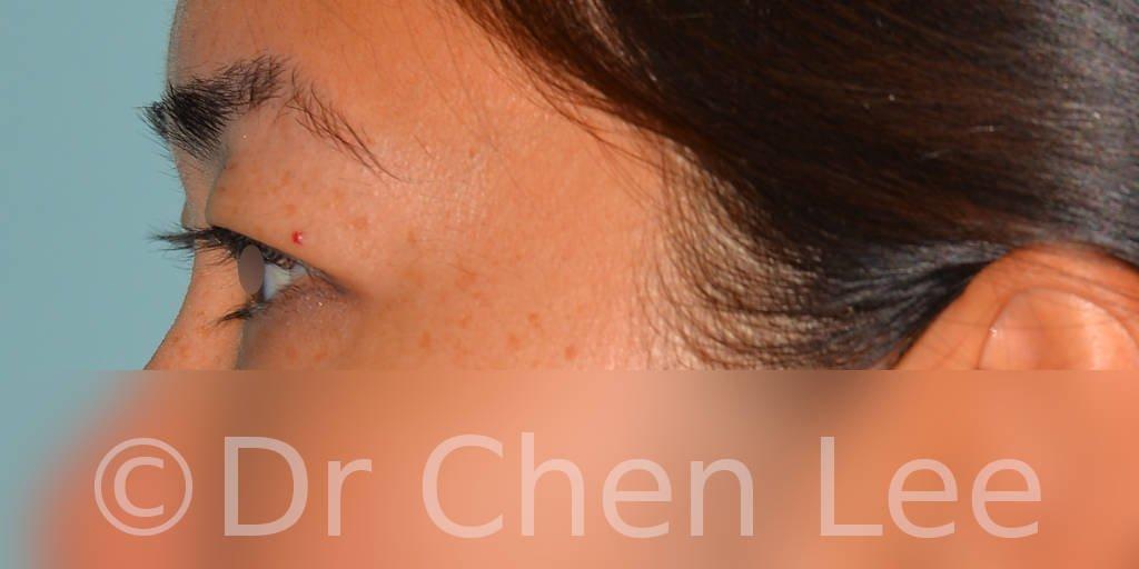 Blépharoplastie asiatique avant après chirurgie des paupières photo côté gauche #04