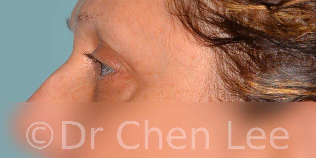 Chirurgie des paupières avant après blépharoplastie photo côté gauche #08