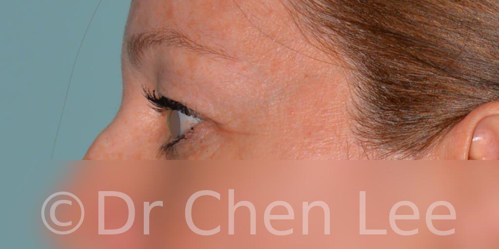 Chirurgie des paupières avant après blépharoplastie photo côté gauche #04