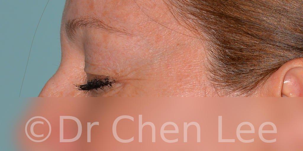 Chirurgie des paupières avant après blépharoplastie photo côté gauche fermée #04