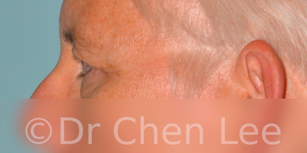 Chirurgie des paupières avant après blépharoplastie photo côté gauche #03