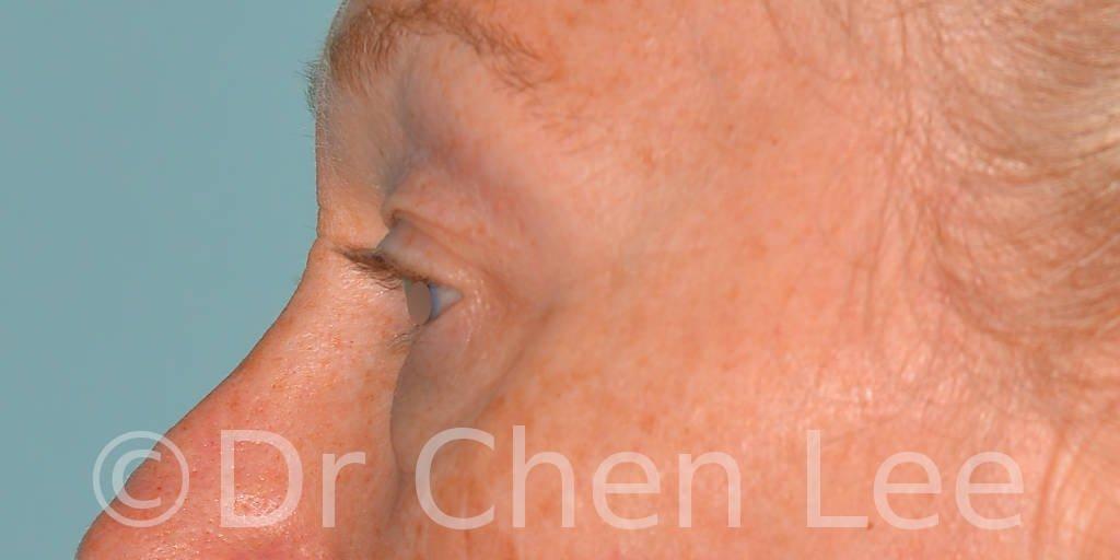 Chirurgie des paupières avant après blépharoplastie photo côté gauche #09