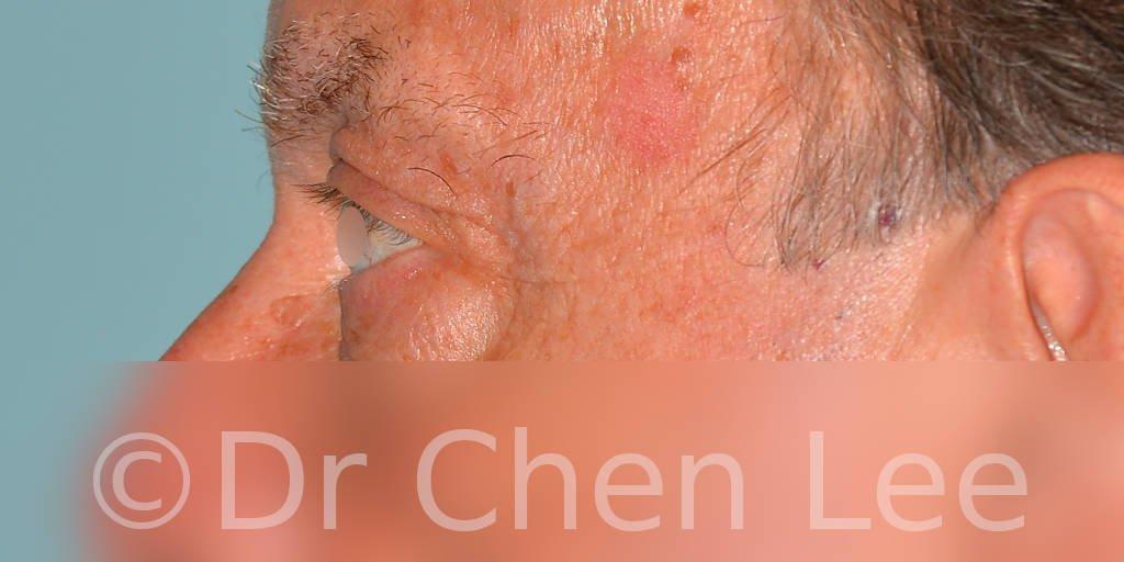 Chirurgie des paupières avant après blépharoplastie photo côté gauche #12