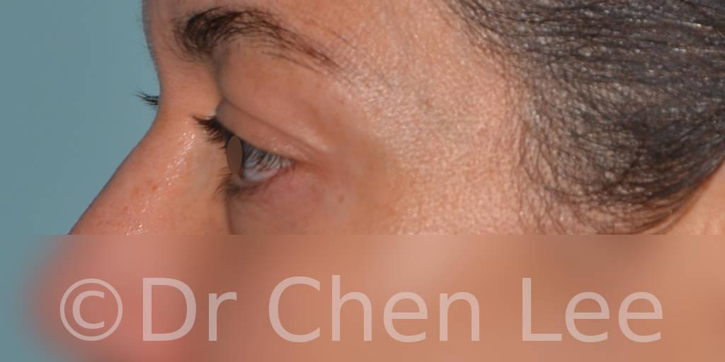 Chirurgie des paupières avant après blépharoplastie photo côté gauche #01