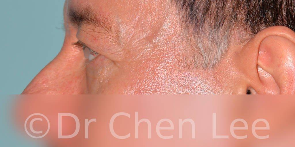 Chirurgie des paupières avant après blépharoplastie photo côté gauche #06