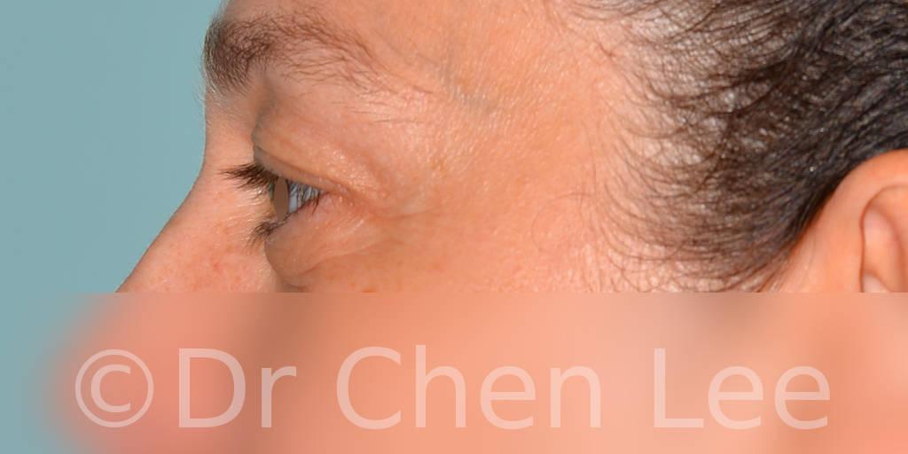 Chirurgie des paupières avant après blépharoplastie photo côté gauche #11