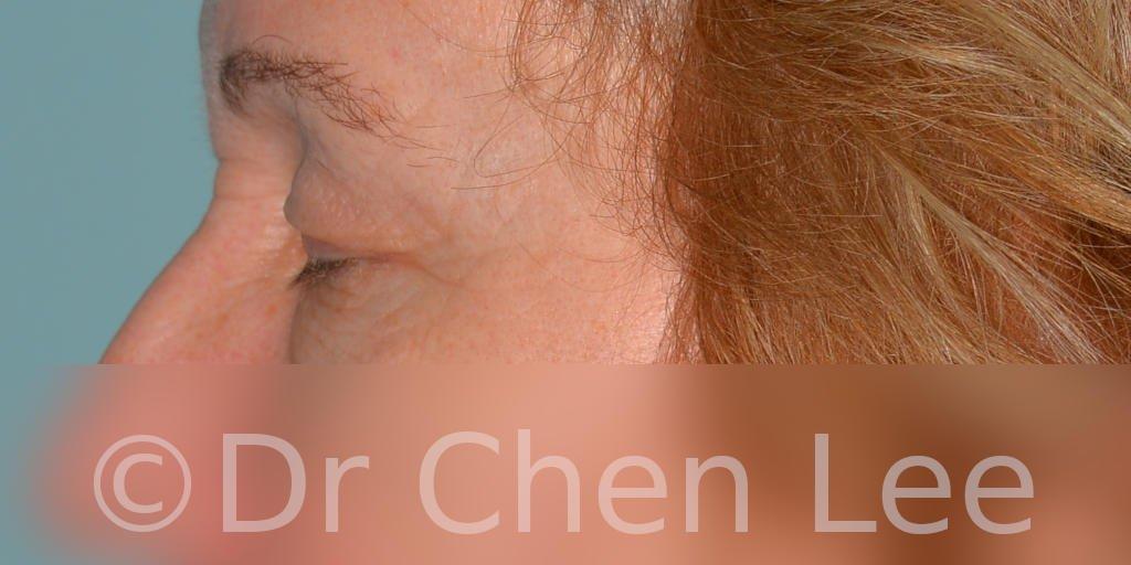 Chirurgie des paupières avant après blépharoplastie photo côté gauche fermée #07