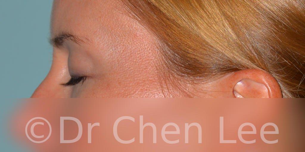Chirurgie des paupières avant après blépharoplastie photo côté gauche fermée #02