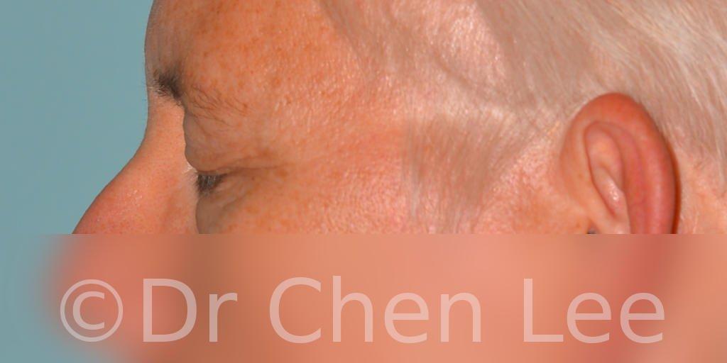 Chirurgie des paupières avant après blépharoplastie photo côté gauche fermée #03