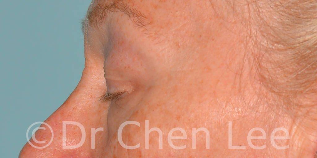 Chirurgie des paupières avant après blépharoplastie photo côté gauche fermée #09