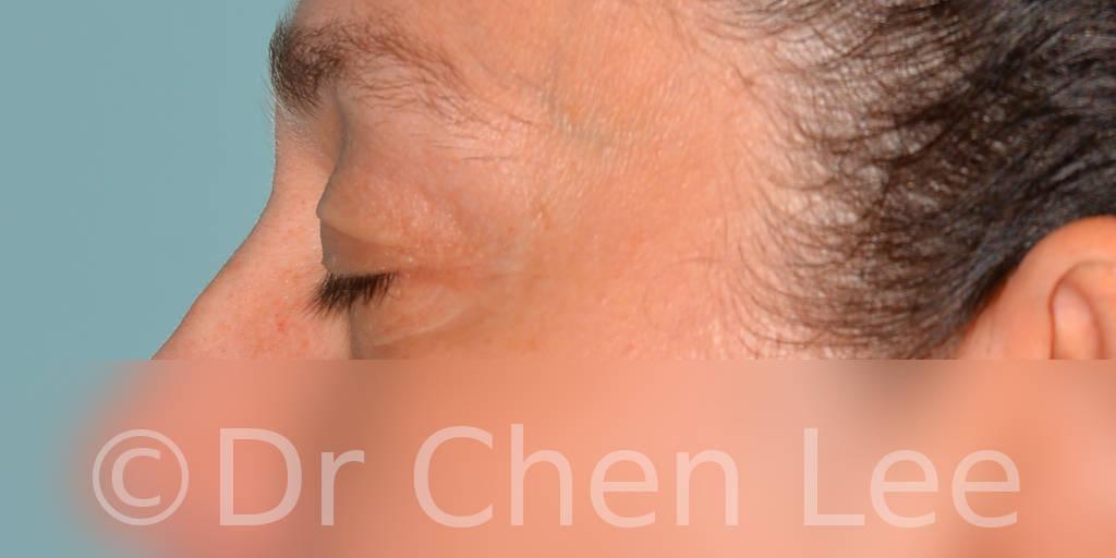 Chirurgie des paupières avant après blépharoplastie photo côté gauche fermée #11
