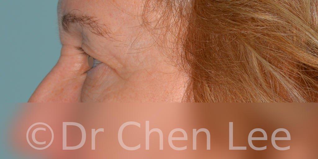 Chirurgie des paupières avant après blépharoplastie photo côté gauche #07