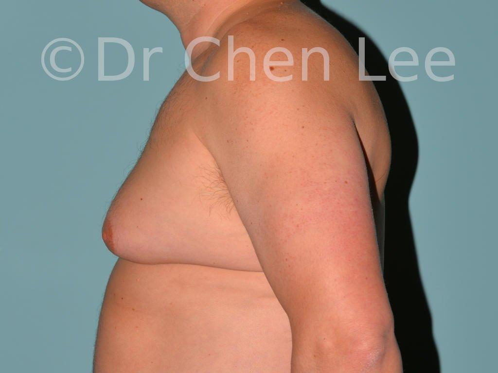 Gynécomastie avant après réduction mammaire homme photo côté gauche #13