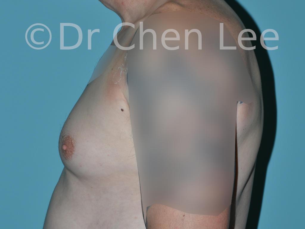 Gynécomastie avant après réduction mammaire homme photo côté gauche #12