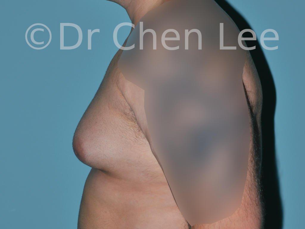 Gynécomastie avant après réduction mammaire homme photo côté gauche #08