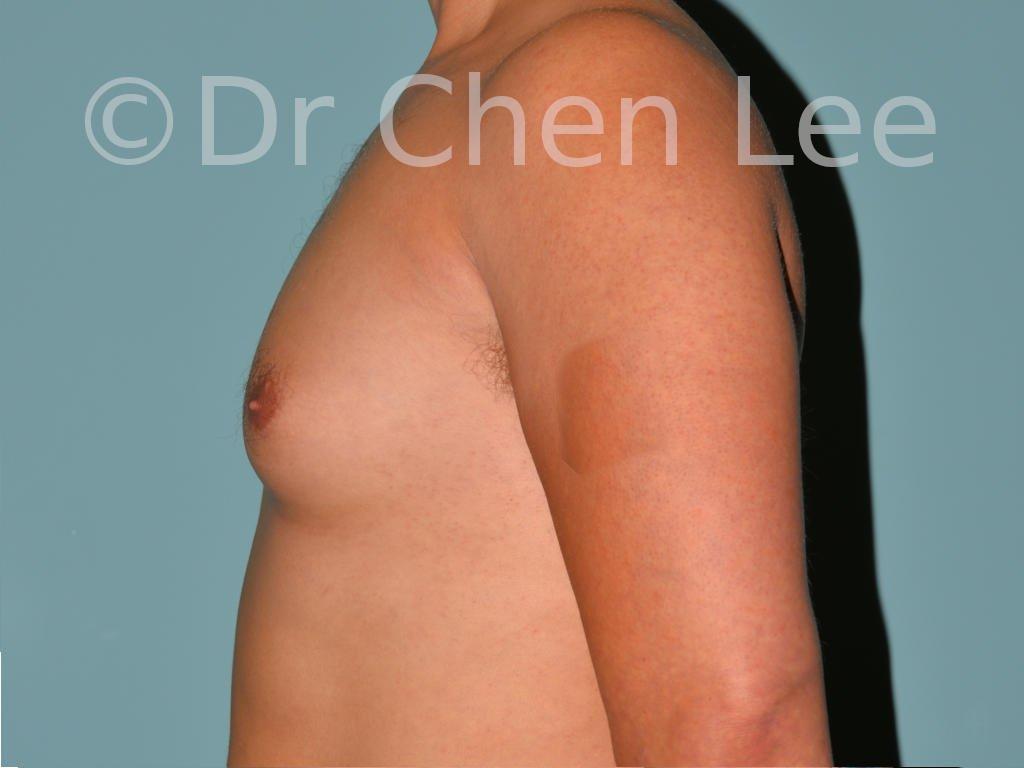 Gynécomastie avant après réduction mammaire homme photo côté gauche #01