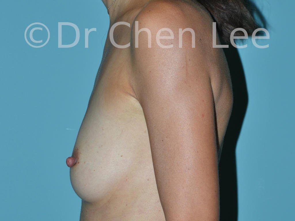 Réduction mamelon proéminent avant après photo côté gauche #02