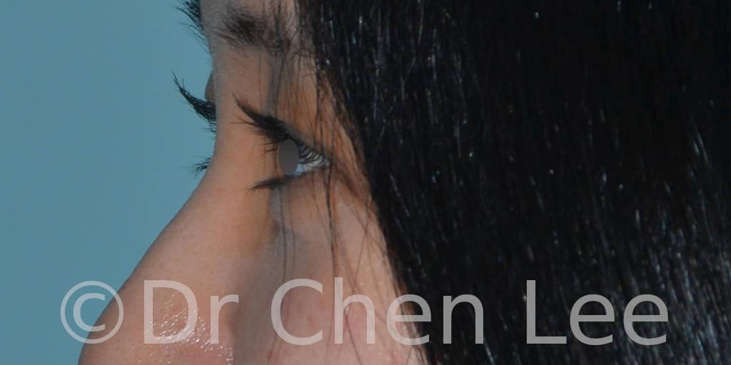 Blépharoplastie asiatique avant après chirurgie des paupières photo côté gauche #01
