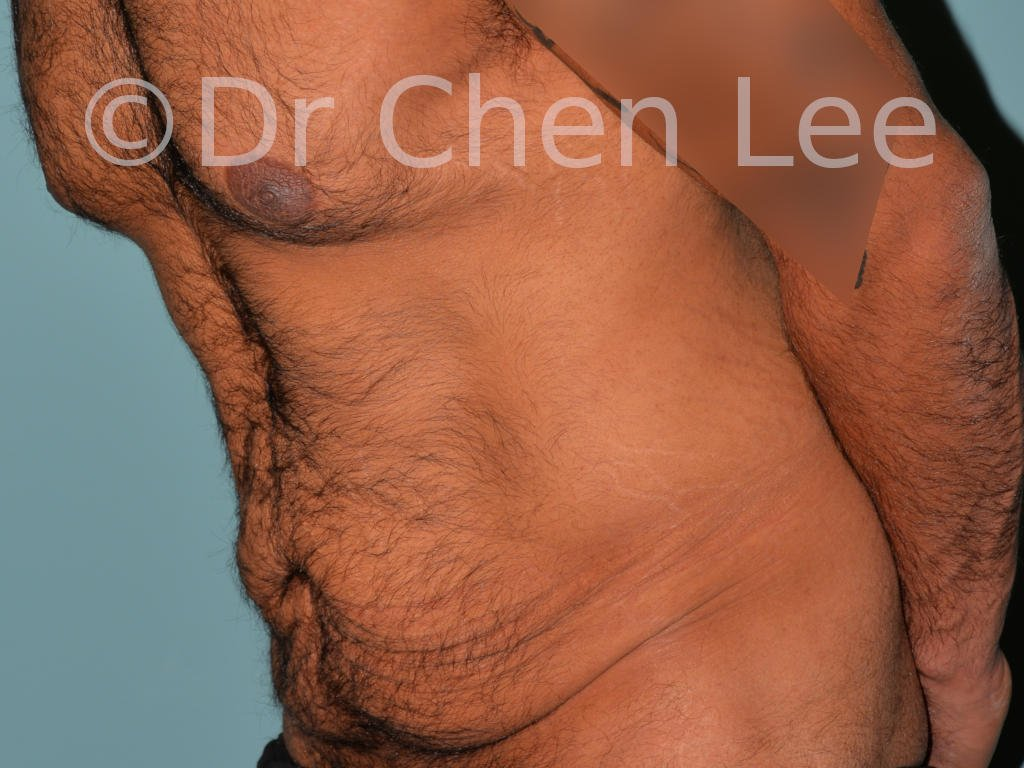 Abdominoplastie avant après redrapage abdomen photo oblique gauche flex #10