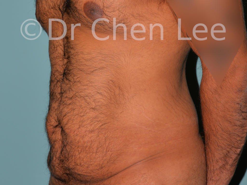 Abdominoplastie avant après redrapage abdomen photo oblique gauche #10