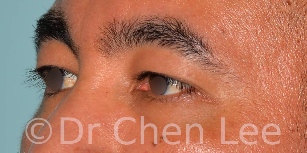 Blépharoplastie asiatique avant après chirurgie des paupières photo oblique gauche #02