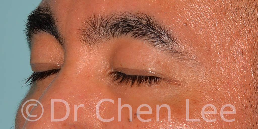 Blépharoplastie asiatique avant après chirurgie des paupières photo oblique gauche fermée #02
