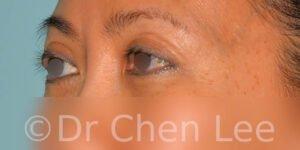 Blépharoplastie asiatique avant après chirurgie des paupières photo oblique gauche #05