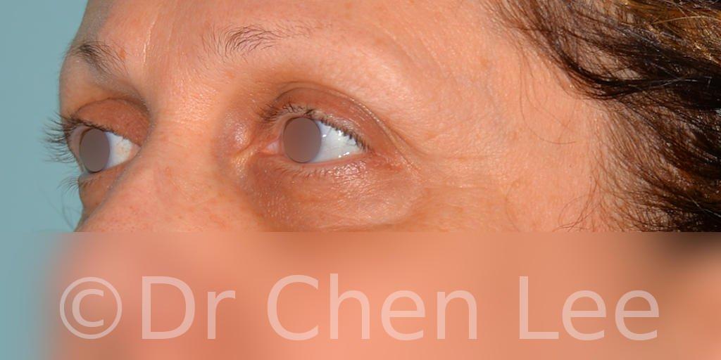 Chirurgie des paupières avant après blépharoplastie photo oblique gauche #08