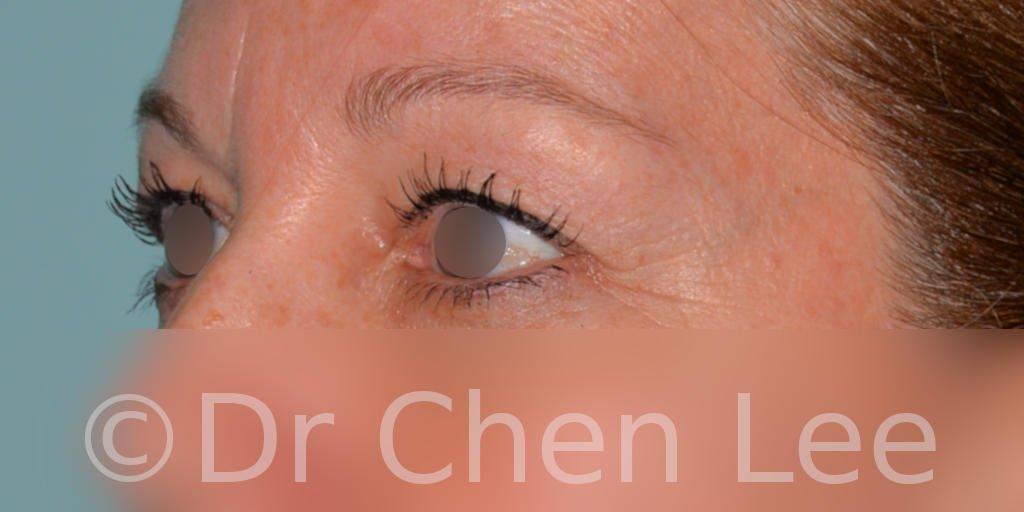 Chirurgie des paupières avant après blépharoplastie photo oblique gauche #04