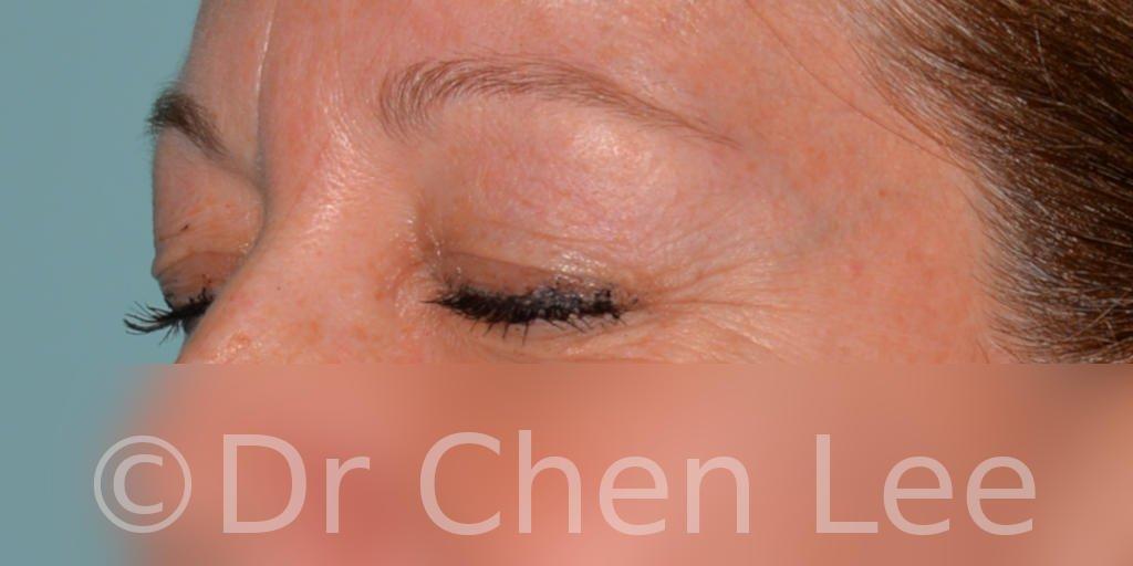 Chirurgie des paupières avant après blépharoplastie photo oblique gauche fermée #04