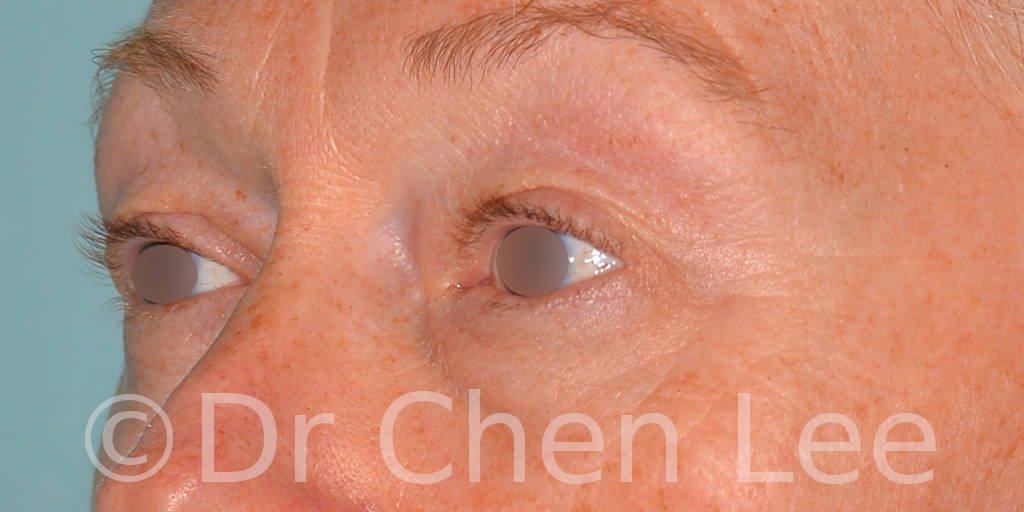 Chirurgie des paupières avant après blépharoplastie photo oblique gauche #09