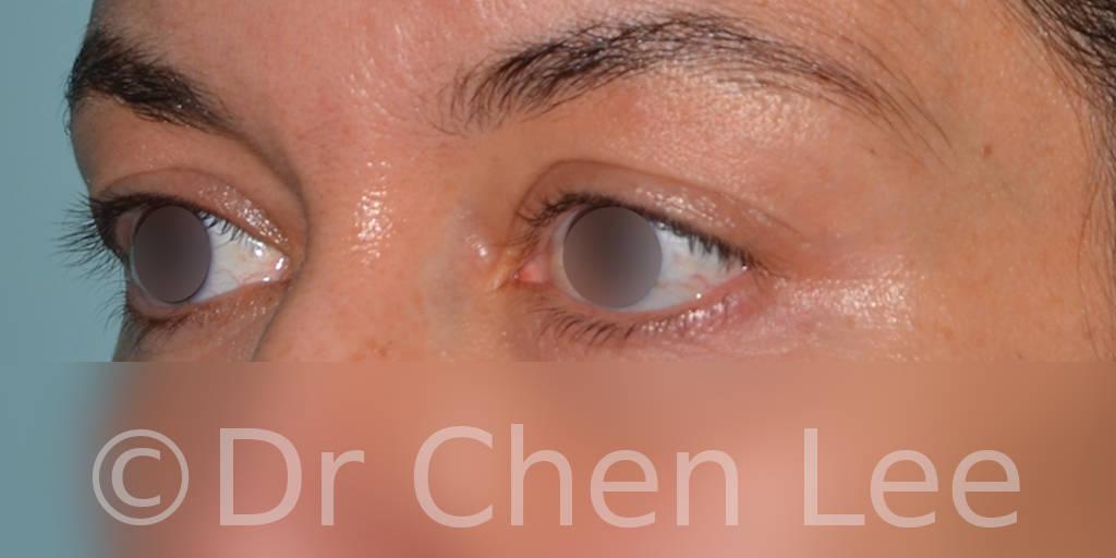 Chirurgie des paupières avant après blépharoplastie photo oblique gauche #01