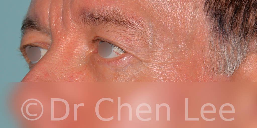 Chirurgie des paupières avant après blépharoplastie photo oblique gauche #06