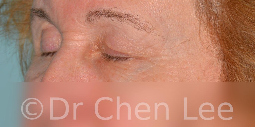 Chirurgie des paupières avant après blépharoplastie photo oblique gauche fermée #07