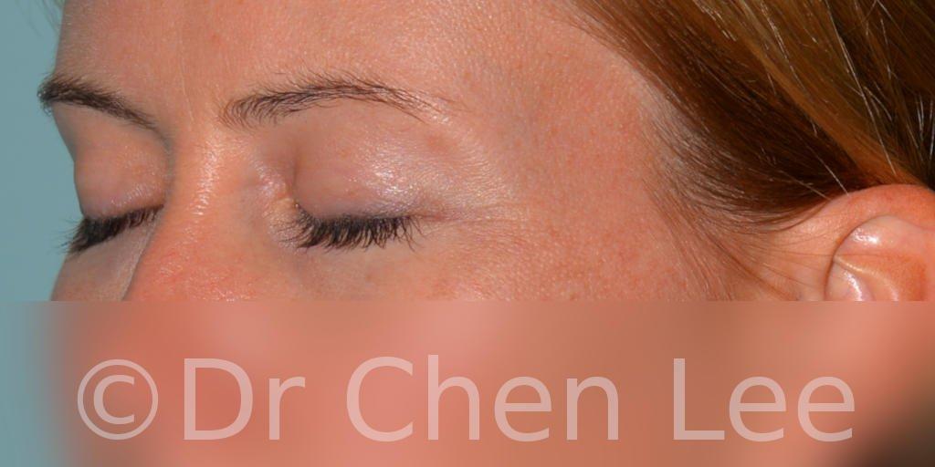 Chirurgie des paupières avant après blépharoplastie photo oblique gauche fermée #02