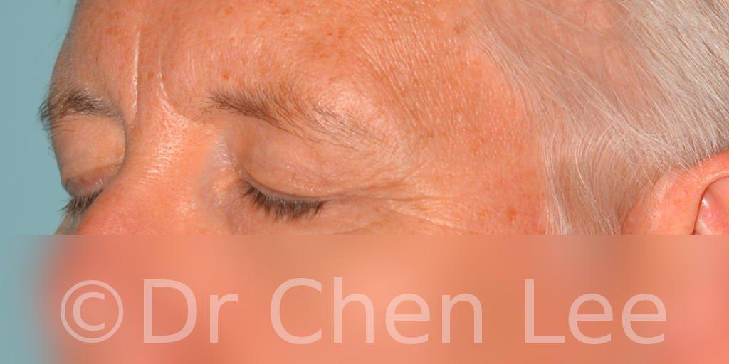 Chirurgie des paupières avant après blépharoplastie photo oblique gauche fermée #03