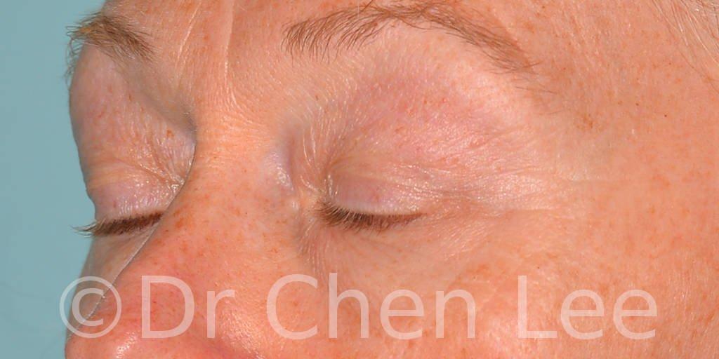 Chirurgie des paupières avant après blépharoplastie photo oblique gauche fermée #09