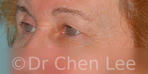 Chirurgie des paupières avant après blépharoplastie photo oblique gauche #07