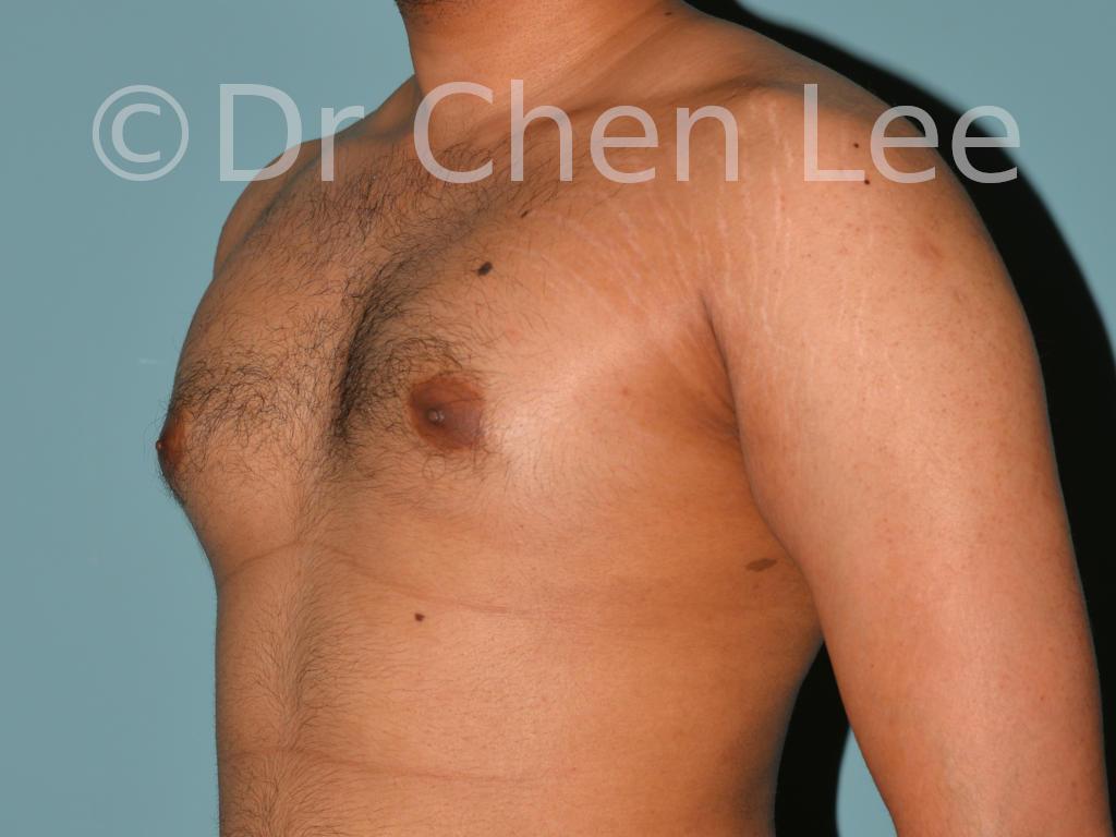 Gynécomastie avant après réduction mammaire homme photo oblique gauche #06