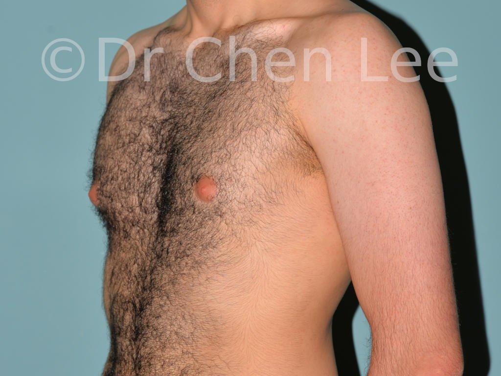 Gynécomastie avant après réduction mammaire homme photo oblique gauche #10