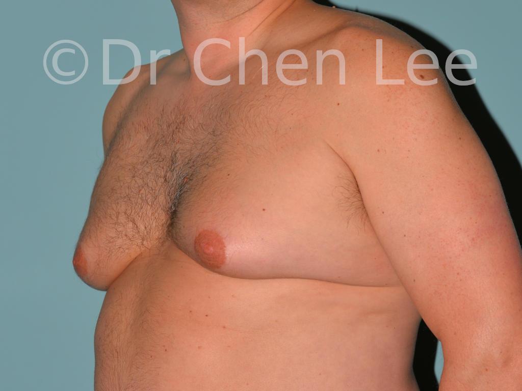 Gynécomastie avant après réduction mammaire homme photo oblique gauche #13