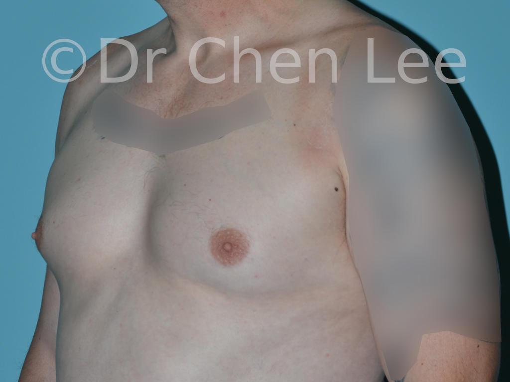 Gynécomastie avant après réduction mammaire homme photo oblique gauche #12