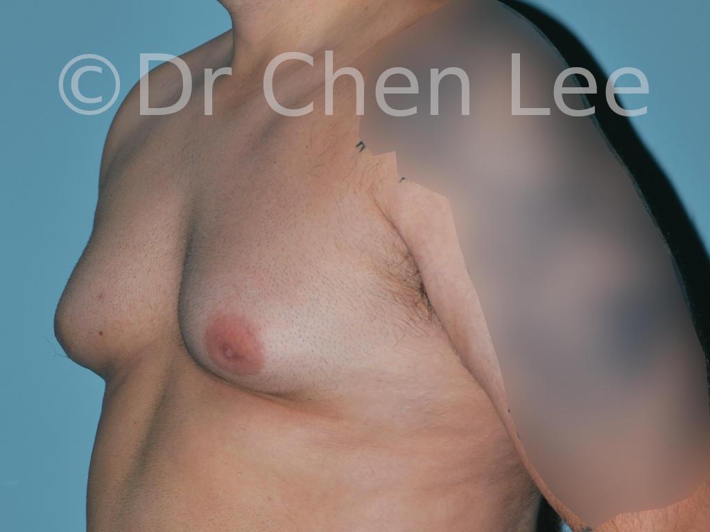 Gynécomastie avant après réduction mammaire homme photo oblique gauche #08