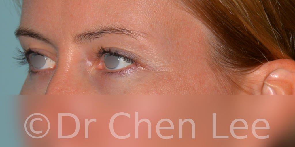 Chirurgie des paupières avant après blépharoplastie photo oblique gauche #02