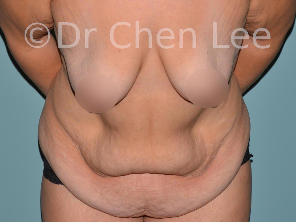 Abdominoplastie avant après redrapage abdomen photo face flex #05