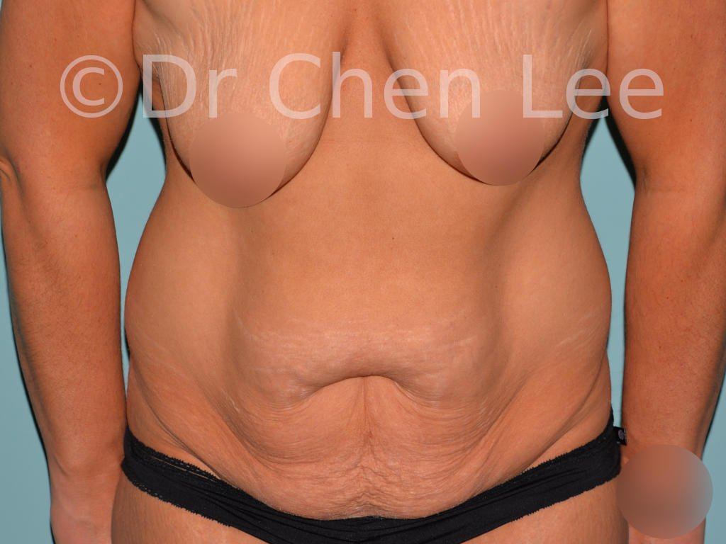 Abdominoplastie avant après redrapage abdomen photo face flex #03